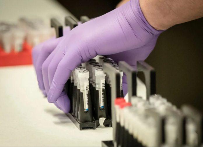 На Буковині ще троє осіб подолали смертоносний вірус