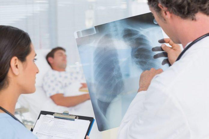 Скільки пацієнтів з пневмоніями перебуває в міських лікарнях Івано-Франківська