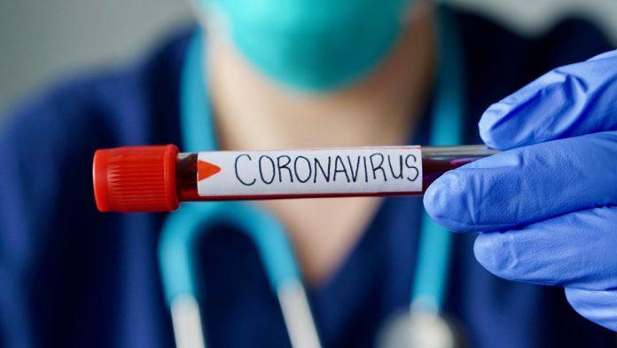 Запізно звернувся по допомогу: в ОДА розповіли про померлого від коронавірусу сільського голову Братківців