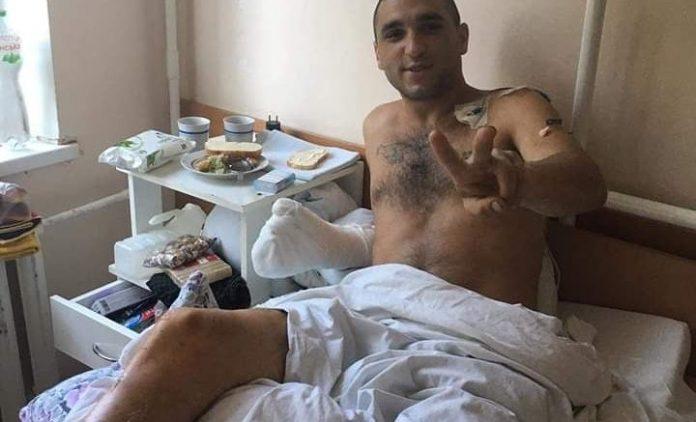 Атовцю з Франківська, який втратив ногу, місто виділило допомогу