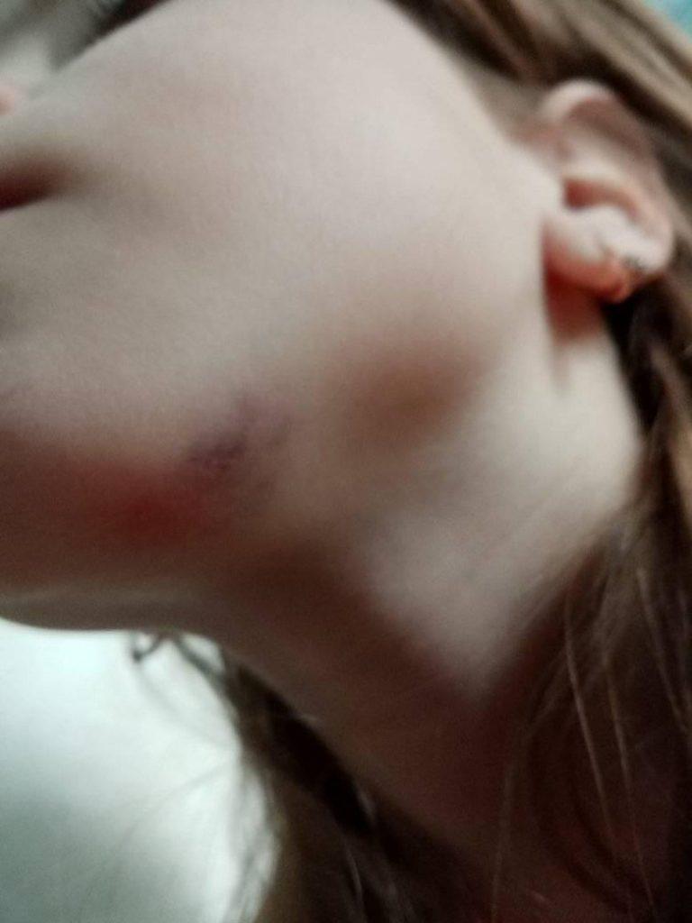 У Франківську на дитячому майданчику травмувалась дитина ФОТО