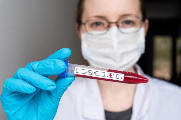 Облрада просить уряд виділити кошти для тестування медпрацівників