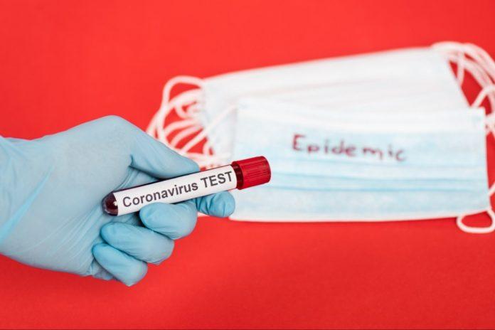 Епідемія COVID-19 на Прикарпатті: за добу ще 139 хворих та 4 летальні випадки