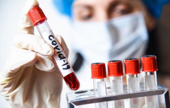 COVID-19 на Прикарпатті: за добу виявлено 106 нових хворих та 4 летальні випадки